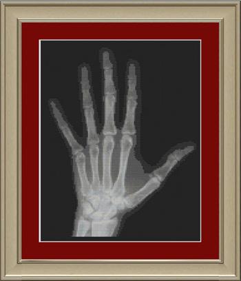 Radiografía de mano en punto de cruz